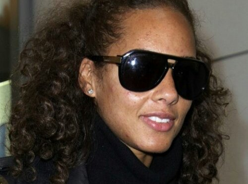 No Photos, Please! 10 Celebs With Famously Bad Skin [Photo Gallery]